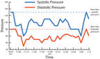Graph of Systolic and Diastolic Pressure