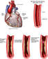 Progression of Coronary Artery Disease