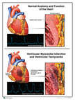 Normal Anatomy and Myocardial Infarction of the Heart