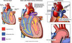 Patch Closure of Patent Ductus Arteriosus