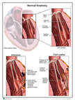 Myocardial Infarction Resulting in a Flail Leaflet
