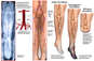 Progression of Arterial Blockage in the Lower Legs