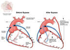 Before and After Heart Bypass Surgery