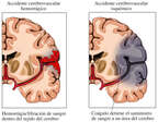 Accidente cerebrovascular hemorrágico vs. isquémico
