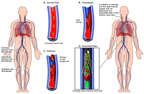 Development of Deep Vein Thrombosis with Surgical Placement of Greenfield Filter