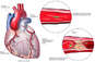 Coronary Artery Disease Leading to Fatal Heart Attack
