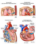 Multiple Cardiovascular Pathologies
